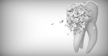 Zerbrechender Zahn ohne Zahnzusatzversicherung auf grauem Hintergrund